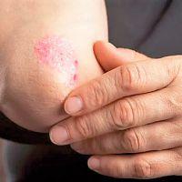 Recomendaciones nutricionales disminuyen severidad de la psoriasis