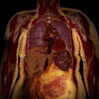 Los peligros de la grasa oculta: el ejercicio es la mejor defensa contra la grasa abdominal