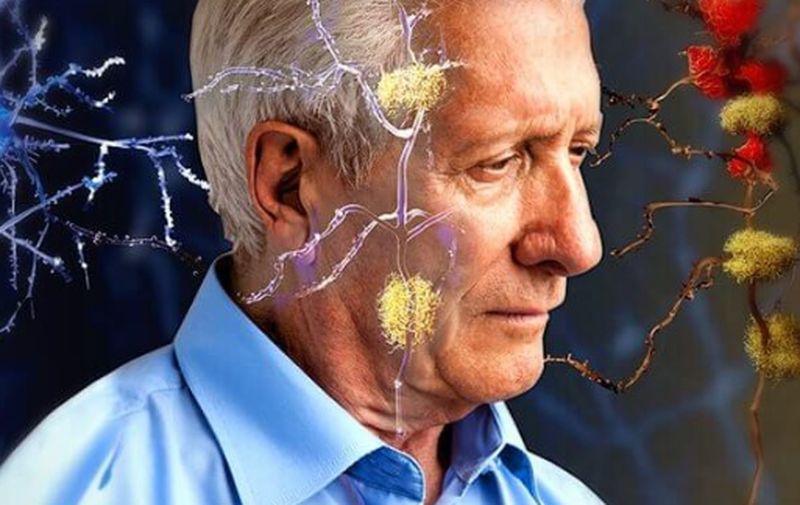 Las personas que sufren diabetes tienen más riesgo de sufrir alzhéimer