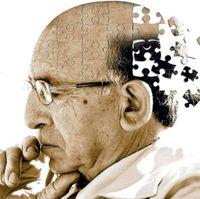 El colesterol 'malo' se asocia con el alzhéimer de inicio temprano