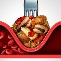 Tener el colesterol malo demasiado bajo podría provocar un ACV